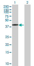 Western blot - NHLRC2 antibody (ab88725)