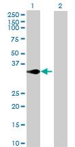 Western blot - C5orf51 antibody (ab88727)