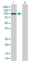Western blot - DHTKD1 antibody (ab88739)