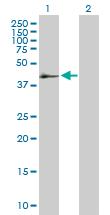 Western blot - SerpinB2 antibody (ab88741)
