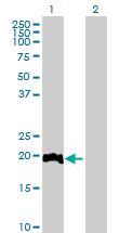 Western blot - LITAF antibody (ab88742)