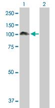 Western blot - Anti-ALIX antibody (ab88743)
