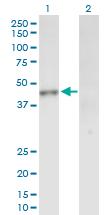 Western blot - INPP1 antibody (ab88755)