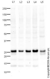 Western blot - RAB21 antibody (ab88762)