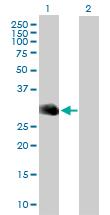 Western blot - Myelin oligodendrocyte glycoprotein antibody (ab88774)