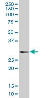 Western blot - CD160 antibody (ab88776)