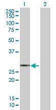 Western blot - SAP30 antibody (ab88778)