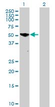 Western blot - Phosphoglucomutase 5 antibody (ab88781)
