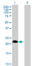 Western blot - Anti-SSPN antibody (ab88784)
