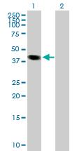 Western blot - MGC17403  antibody (ab88786)