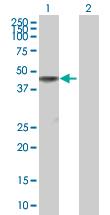 Western blot - WDR18 antibody (ab88787)