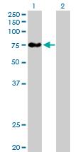 Western blot - BBS12 antibody (ab88789)