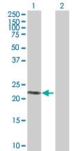 Western blot - PTPNS1L2 antibody (ab88791)