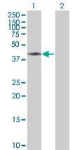 Western blot - ASCC1 antibody (ab88792)