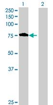 Western blot - CCDC93 antibody (ab88811)