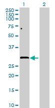 Western blot - GPN2 antibody (ab88812)