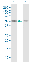 Western blot - TUBB4Q antibody (ab88815)