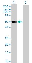 Western blot - SH3GLB2 antibody (ab88816)