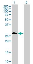 Western blot - Proteasome 20S LMP7 antibody (ab88820)