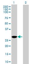 Western blot - NUBP2 antibody (ab88822)