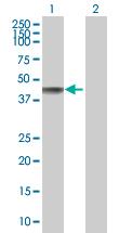 Western blot - KPC2 antibody (ab88823)
