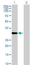 Western blot - COPE antibody (ab88824)