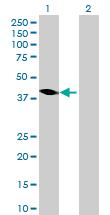Western blot - Anti-Homer antibody (ab88827)