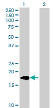 Western blot - ARL2BP antibody (ab88828)