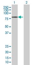 Western blot - ZBTB22 antibody (ab88833)
