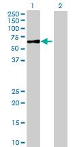 Western blot - CCM2 antibody (ab88834)