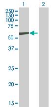 Western blot - CCM2 antibody (ab88835)
