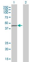 Western blot - FECH antibody (ab88838)