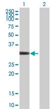 Western blot - EXOSC3 antibody (ab88859)