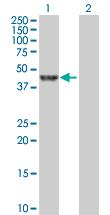Western blot - LANCL2 antibody (ab88860)