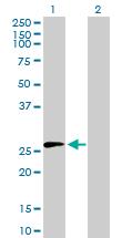 Western blot - Membrin antibody (ab88866)
