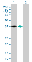 Western blot - MRPL38 antibody (ab88867)