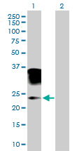 Western blot - Orosomucoid 2 antibody (ab88869)
