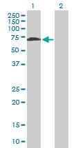 Western blot - WHSC2 antibody (ab88870)