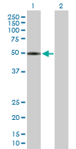 Western blot - Acyltransferase like 1 antibody (ab88871)