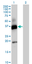 Western blot - CD300 antigen antibody (ab88873)