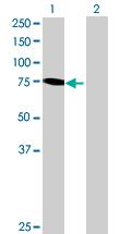 Western blot - RHOBTB1 antibody (ab88876)