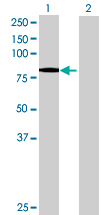 Western blot - Neurochondrin antibody (ab88877)