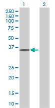 Western blot - C14orf130 antibody (ab88879)