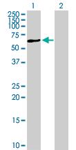 Western blot - Anti-P4HA1 antibody (ab88881)