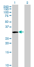 Western blot - TST antibody (ab88883)