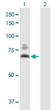 Western blot - Pyruvate Dehydrogenase E2 antibody (ab88884)