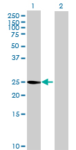 Western blot - GAMT antibody (ab88886)