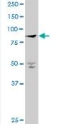 Western blot - PANK4 antibody (ab88887)