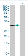 Western blot - HSD17B6 antibody (ab88892)