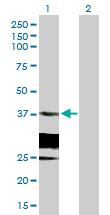 Western blot - HSD17B6 antibody (ab88893)